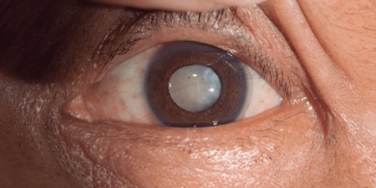 Fotografía de un ojo con catarata